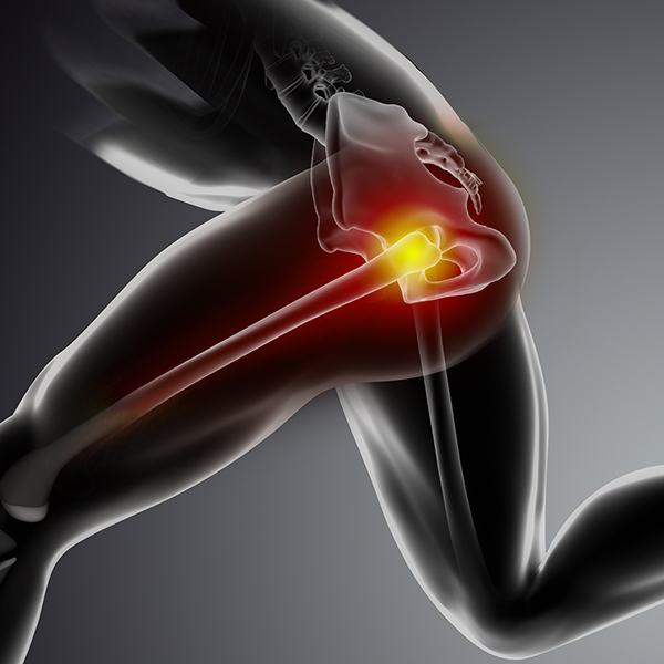Physical Therapy for Hip